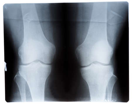 Knee joint x-ray film slide, front view photo