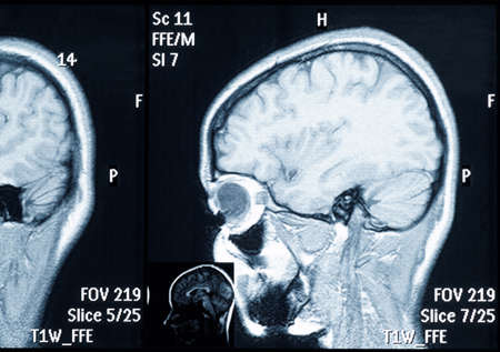 vertebrae view: Real brain MRI slide of a young woman. Patients and clinics names removed Stock Photo