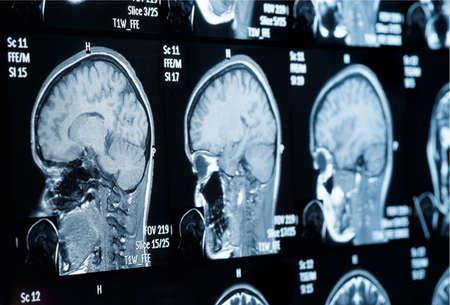personal data: Head MRI scan, personal data removed Stock Photo
