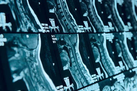 Head and neck MRI scan, anonymized, shallow focus depth photo