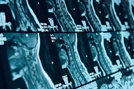 Hoofd en nek MRI-scan, geanonimiseerd, ondiepe focus diepte