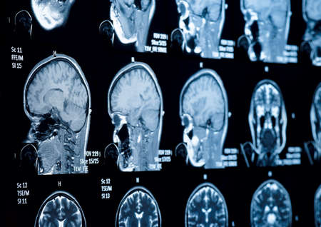 Head and neck MRI scan, private info deleted, shallow focus photo