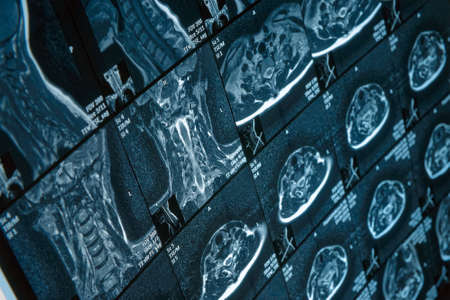 Head and neck MRI scan, anonymized, shallow focus photo