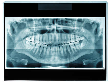 patient data: Panoramic dental X-ray slide, patient data removed