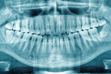Panoramic dental X-ray, fully impacted wisdom tooth is seen 写真素材