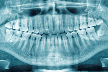 Panoramic dental X-ray, is volledig beïnvloed verstandskies gezien