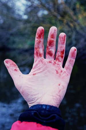 Minor but bloody trauma to wrist, coagulated blood, withered skin, toned image