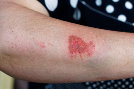 Scratched skin on woman's arm, minor trauma due to fall