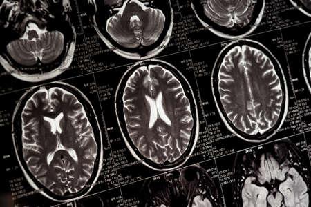 MRI scan of human brain, black and white