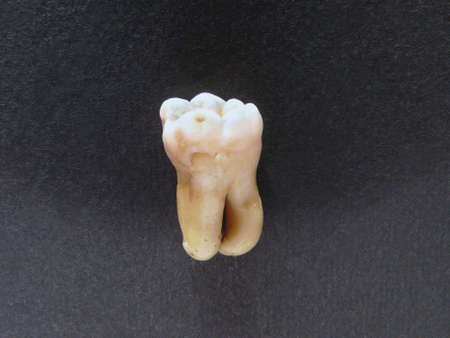 Single human molar vertical on black photo