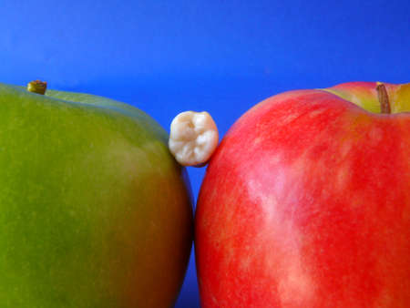 dentition: Real molar between two apples isolated on blue Stock Photo