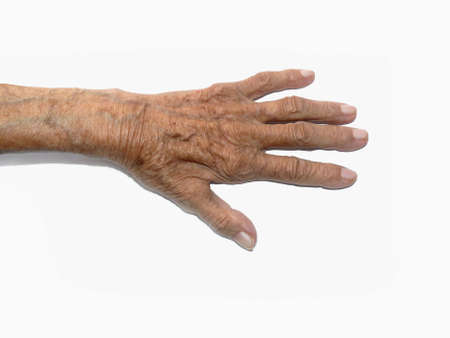 gerontology: A heavily lined elderly womans hand