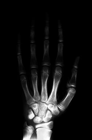 thumb x ray: 11 years old boy left hand and wrist X-ray Stock Photo