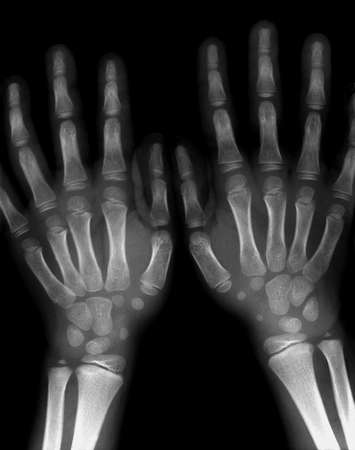 thumb x ray: 7 years old boy both hands and wrists X-ray