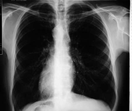 Man frontal chest X-ray photo