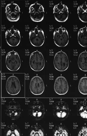 A brain MRI revealing a tumor photo