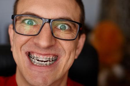Curved teeth of guy with braces in glasses close up. Portrait of man. Crazy face. Happy expression