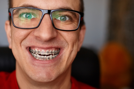 Crazy face of guy with braces on his teeth with smile and glasses. Happy expression. Portrait of man close up Imagens
