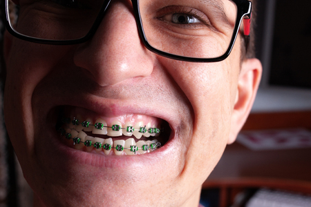 Face of a young man with metal dental braces and glasses close-up.