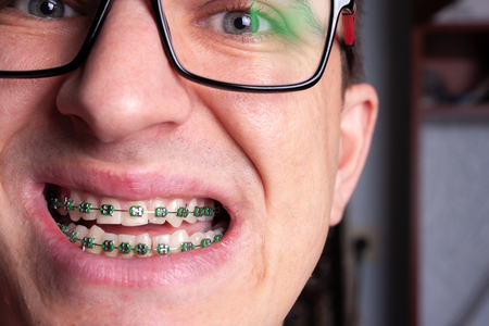 Portrait of a man with crooked teeth and metal braces with green rubber bands close-up. Young man with dental orthodontic braces.