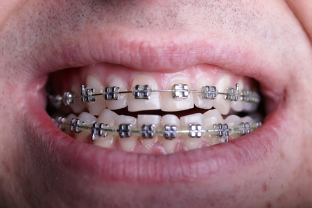 Metal orthodontic braces on crooked ugly teeth close-up. Ugly smile. Dental concept, medicinal alignment of teeth, brackets orthodontist