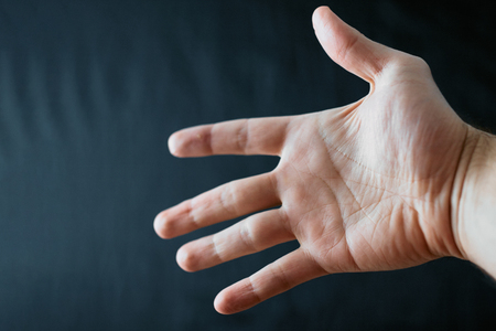Adult hand with Raynaud's Syndrome - Phenomenon. Close up hand with fingers on dark background with copy space