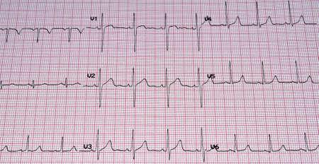 Heart analysis, ECG graph. Stock Photo