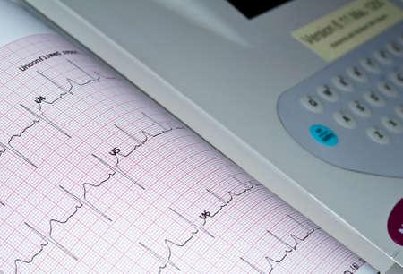 Medical equipment: heart analysis, ECG graph. Stock Photo