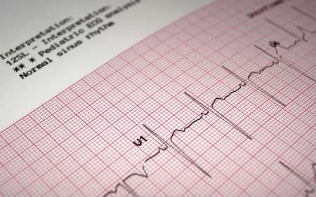 Heart analysis, ECG graph, pediatric electrocardiogram.