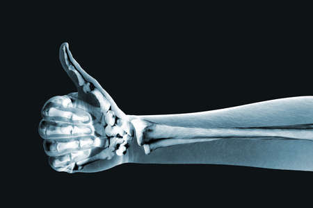 ortopedia: x-ray mano sobre fondo negro Foto de archivo