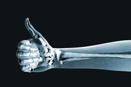 orthopaedics: x-ray mano sobre fondo negro Foto de archivo