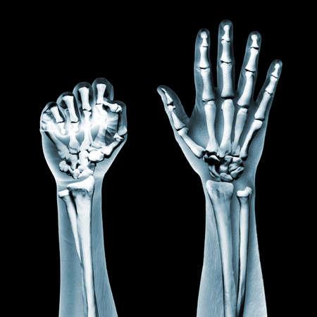 broken wrist: rayos X las manos sobre fondo negro Foto de archivo