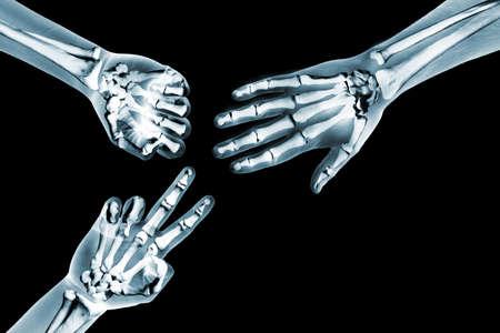 ortopedia: una radiografía de las manos tocando Rock Paper Scissors