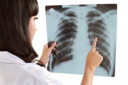 lungenkrebs: Weibliche Arzt sorgf�ltig R�ntgenaufnahme des Patienten in isolierten abckground