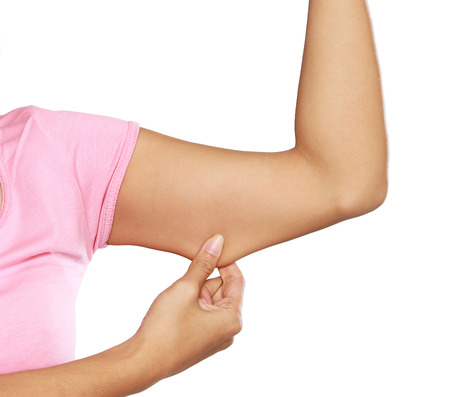 excess: woman holding a hand with excess fat. On a white background Stock Photo