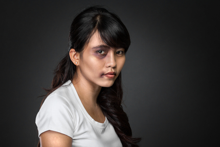 A portrait of a asian woman victim of domestic abuse photo
