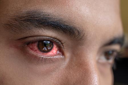 irritated red eyes need sterile eye drops Stock fotó
