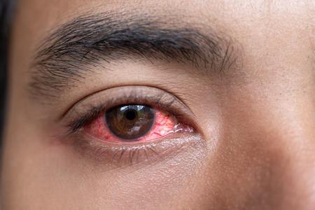 Cerca del hombre ojos rojos irritados