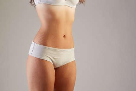 vientre femenino: Vientre femenino con estrías primer plano sobre un fondo gris Foto de archivo