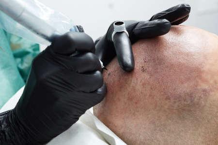 Tatuatore professionista facendo trucco permanente tricopigmentation Archivio Fotografico - 71293875