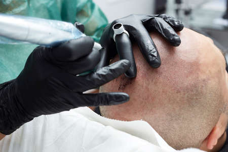 Tricopigmentation - professional tattooist making permanent make up on mans skin head
