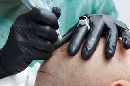 Tricopigmentation -  professional tattooist making permanent make up on mans skin head Stock Photo
