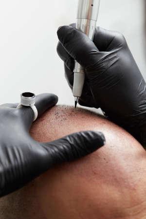 Cosmetologist making permanent makeup on man skin head - tricopigmentation Stock Photo