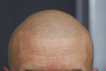 permanent make up - tricopigmentation 스톡 콘텐츠