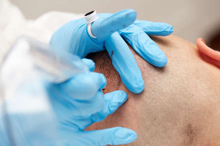 professional tattooist making permanent make up tricopigmentation