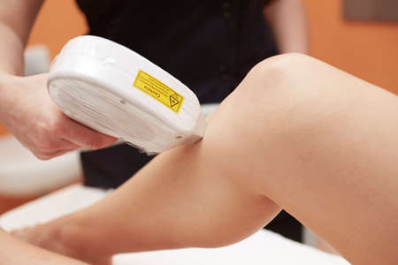 underarms: laser epilation treatment