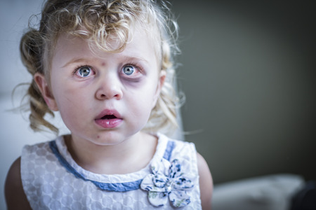 foster: Sad and Frightened Little Girl with Bloodshot and Bruised Eyes. Stock Photo