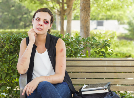 violated: Sad Bruised and Battered Young Woman Sitting on Bench Outside at a Park.