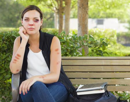 mujer golpeada: Triste contusionado y Maltratadas Mujer joven que se sienta en banco fuera en un parque.