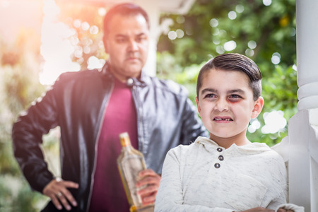 Afraid and Bruised Mixed Race Boy In Front of Angry Man Holding Bottle of Alcohol. 版權商用圖片